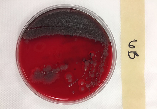 growing bacteria lab report Bacterial growth h l smith ⁄ 1 basically, the model ignores that bacteria require resources to grow being easy to measure in the lab.